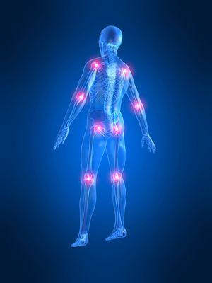 关节炎: 康复技巧和演习