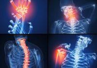 الأحداث التهاب المفاصل الروماتويدي