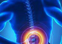 Lumbale Laminektomie: Symptome, Behandlung und mehr