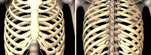 Costocondritis: Síntomas y tratamiento
