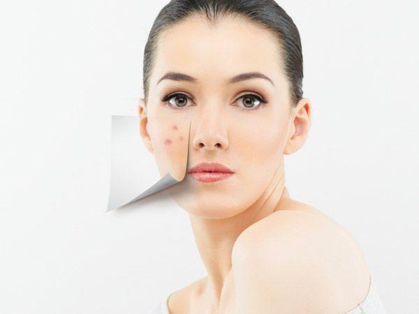 acne adulta
