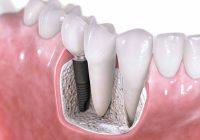 牙科植入物与手术