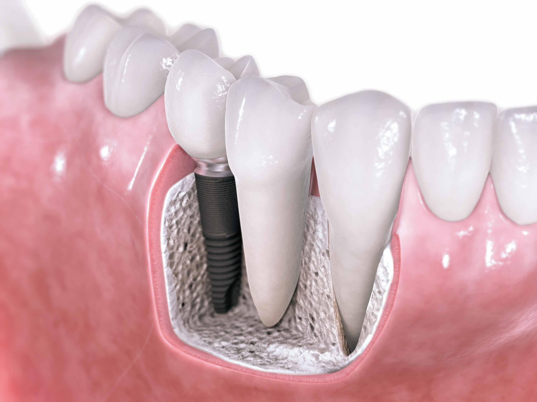 Implantes dentales con cirugía