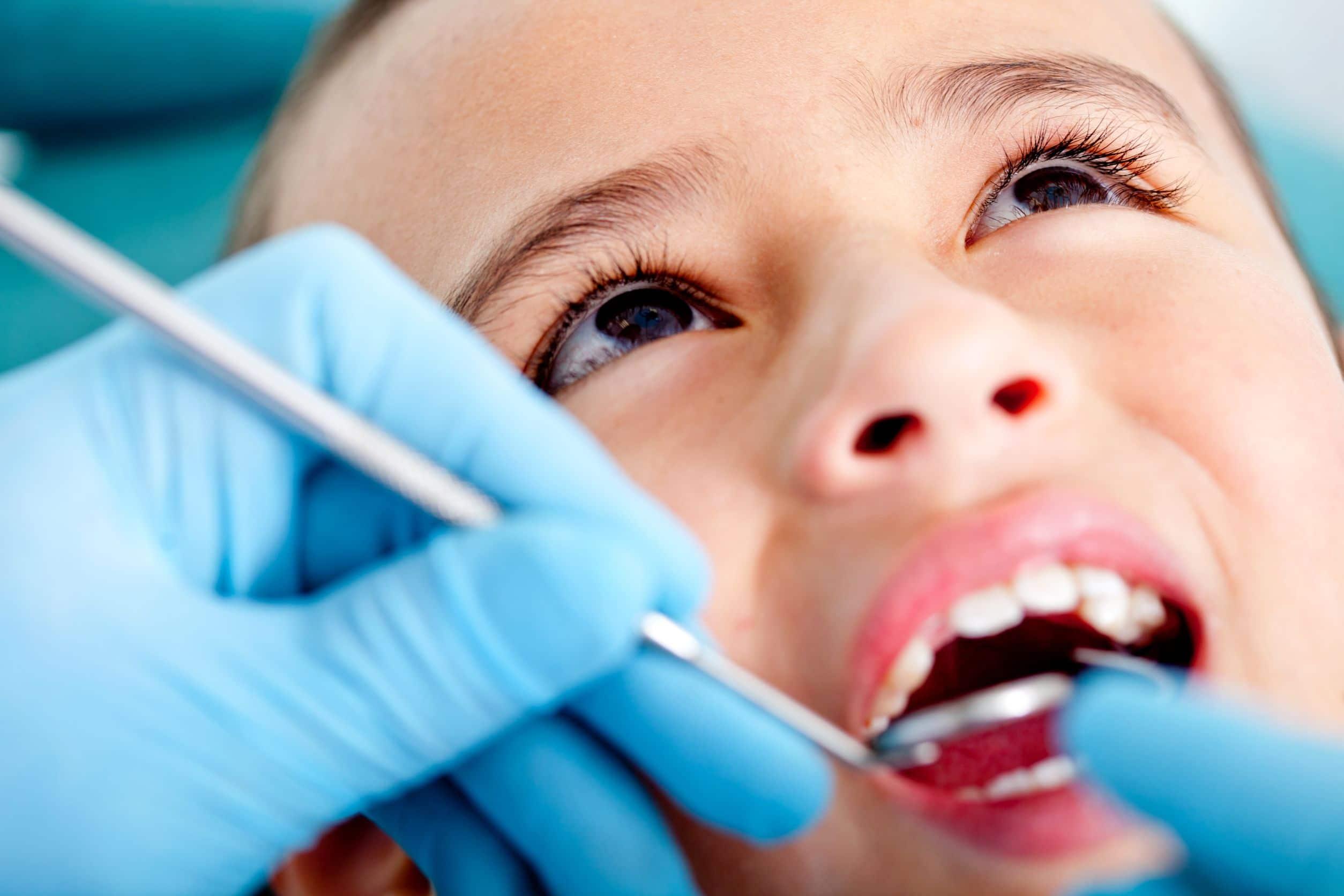 Problèmes dentaires chez les enfants
