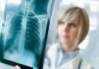 Scanner médical