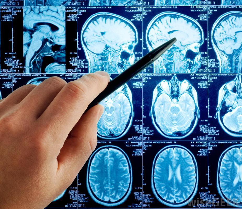 大脑基底节钙化的综合征