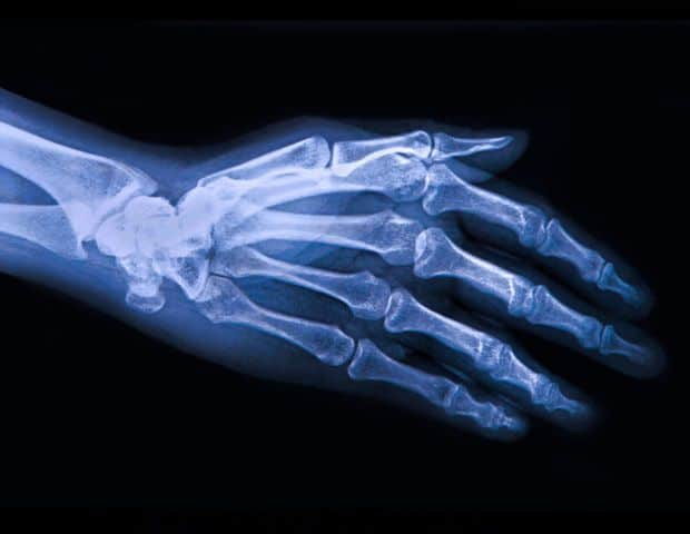 microcapsules, arthrose