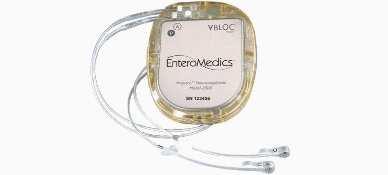 VBLOC, 治疗肥胖症的植入式电子装置