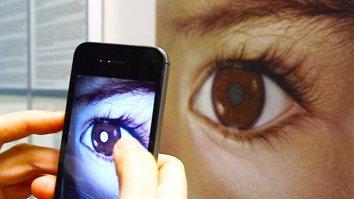 Cancer de l'oeil, les rétinoblastomes