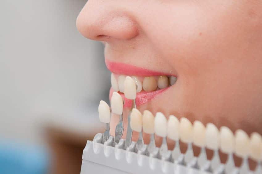 牙科单板: 找出你想要知道的一切