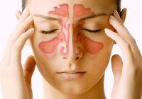 Reconocer la Sinusitis
