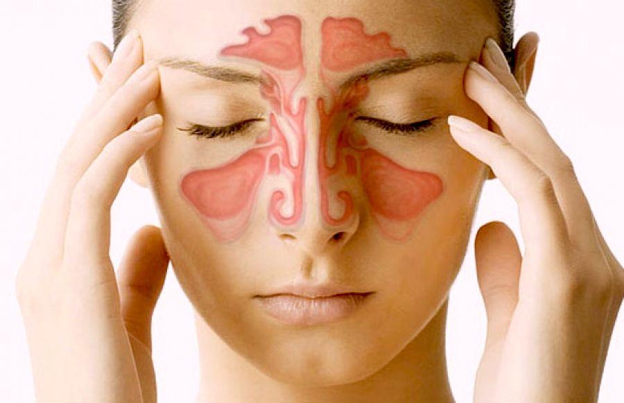 Reconhecer sinusite
