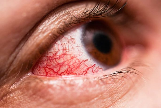 Conjonctivite: ce qu'il faut savoir sur les yeux roses