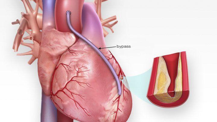 ECP, dérivation de pontage coronarien