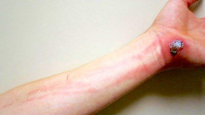 Cellulite, eine bakterielle Hautinfektion