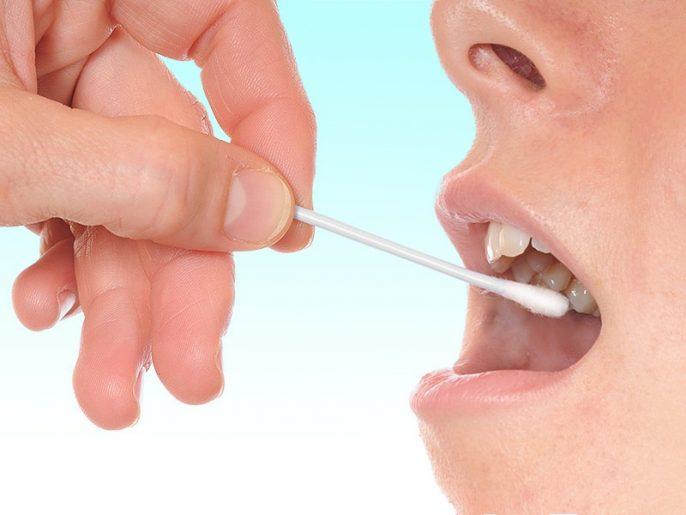 Un nouveau test de salive pourrait permettre une détection précoce de la maladie d'Alzheimer