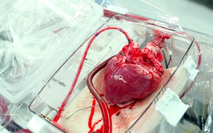 greffes de coeur