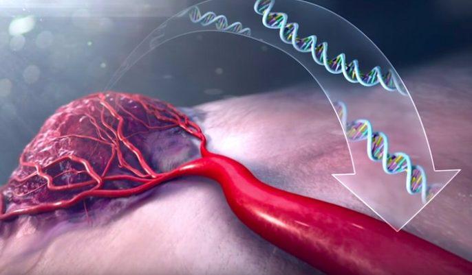 Los pros y contras de la prueba para el cáncer de pulmón y otros cánceres mortales