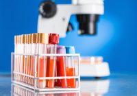 ¿Vale la pena ponerse en riesgo a sufrir diabetes por buscar los beneficios de la estatina?
