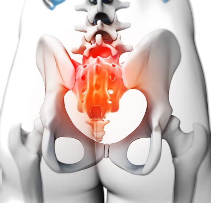 Las causas comunes de dolor de coxis (coxidinia)