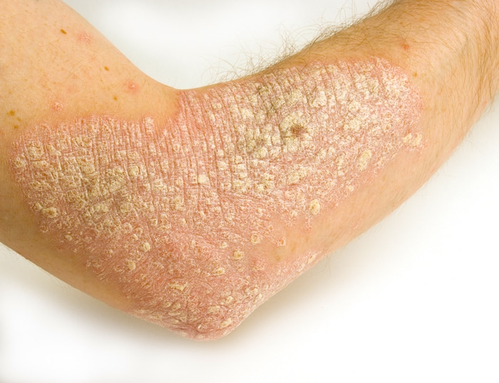As causas mais comuns de descamação da pele