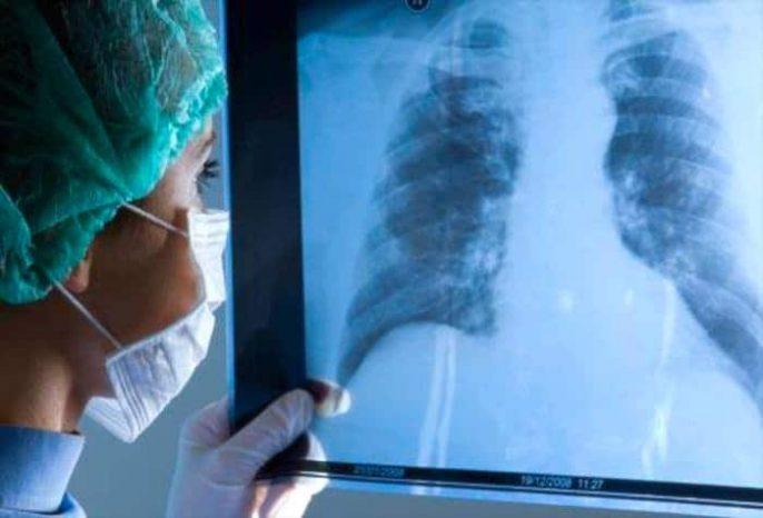 Warum entwickeln manche Raucher COPD und andere nicht?
