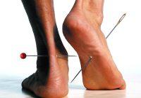 Formigamento ou coceira (alfinetes e agulhas)