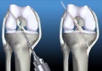 Ligamento cruzado anterior, complicaciones de la cirugía