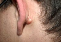 Bultos detrás de la oreja