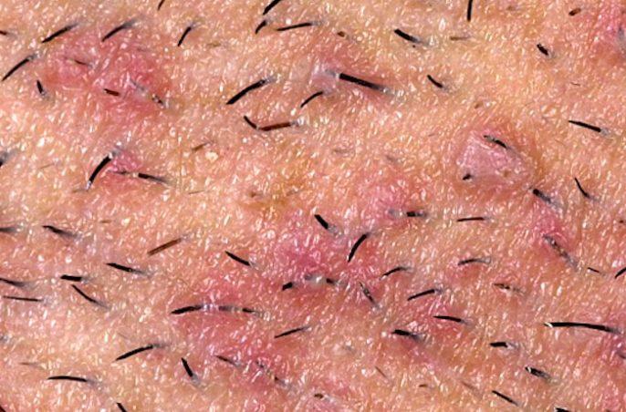 Marcas oscuras y cicatrices de pelos encarnados e irritación en la región púbica