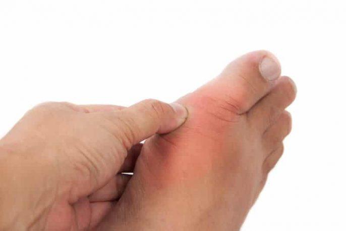 La gota: ¿Podría usted reconocer esta forma compleja de artritis?