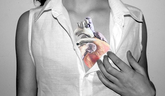 医生不要总是在妇女检测心脏疾病的预警信号