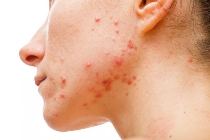 La metformina para el acné y el síndrome de ovario poliquístico