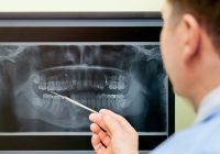 لماذا قد تحتاج إلى إجراء عملية الجيوب الأنفية إذا كنت تريد زراعة الأسنان؟