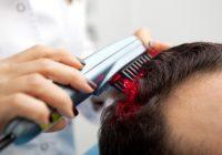 ¿Cómo detener la caída del cabello?