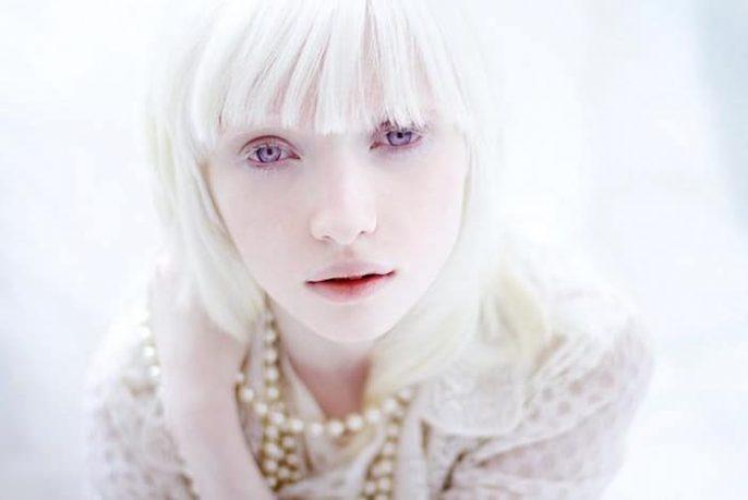 El albinismo - ¿Qué es y cuál es su causa?