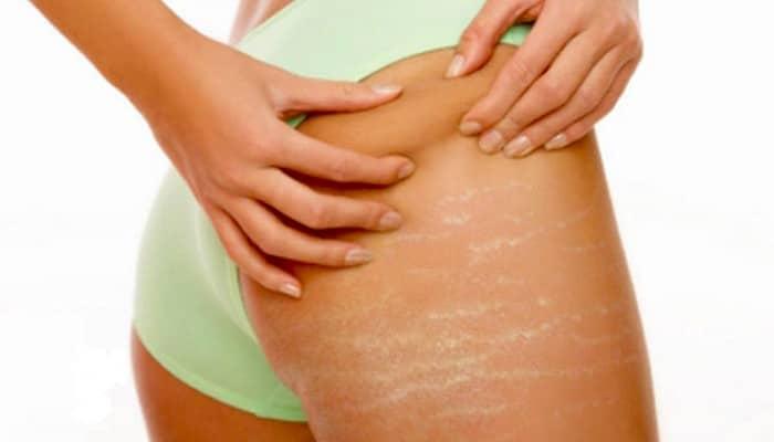 妊娠纹: 类型的治疗和预防