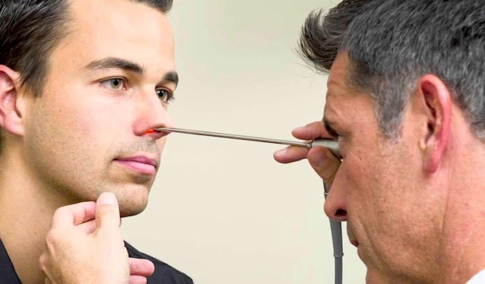 नाक पट का विचलन के लिए Septoplasty