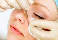 O tratamento de poros e espinhas