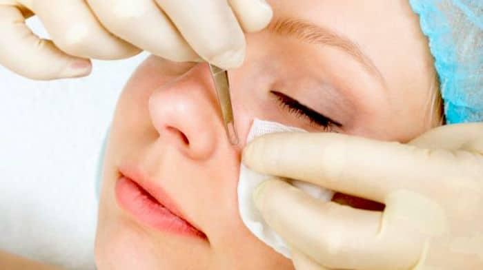 Pores और pimples का इलाज