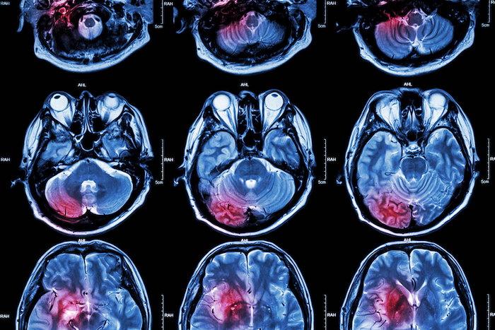 Možganska anevrizma