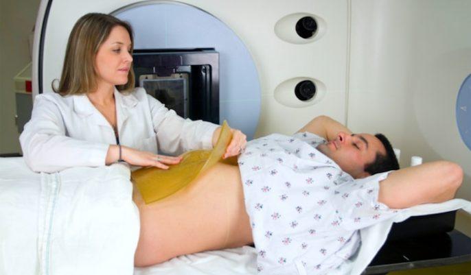 Cáncer de colon: Los síntomas, factores de riesgo, diagnóstico y tratamientos