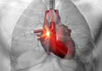 La mayoría de las causas más comunes de las palpitaciones