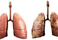 خطر الاصابة بسرطان الرئة بعد الاقلاع عن التدخين
