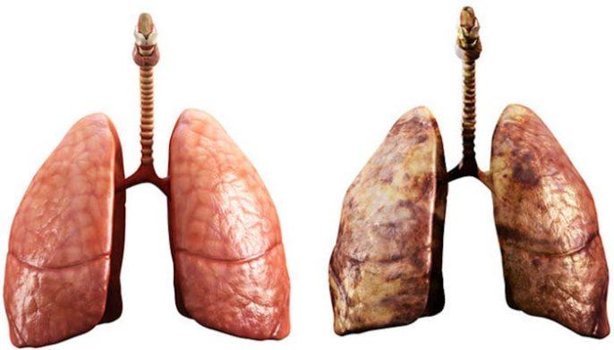 Risque de cancer du poumon après avoir cessé de fumer
