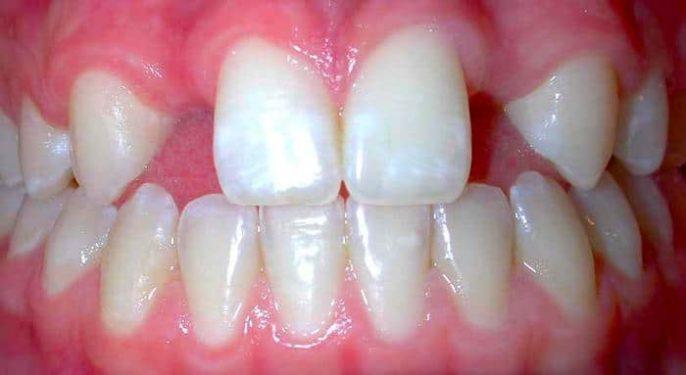 Vous manque-t-il des dents permanentes? Pourquoi cela se produit-il et que faire?
