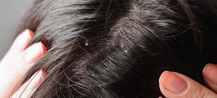 Remèdes naturels pour la dermatite séborrhéique (pellicules)