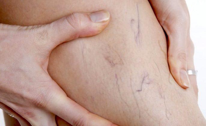 Venas varicosas, síntomas, causas y tratamientos