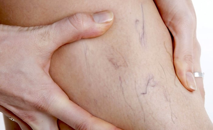 Veias varicosas, sintomas, causas e tratamentos