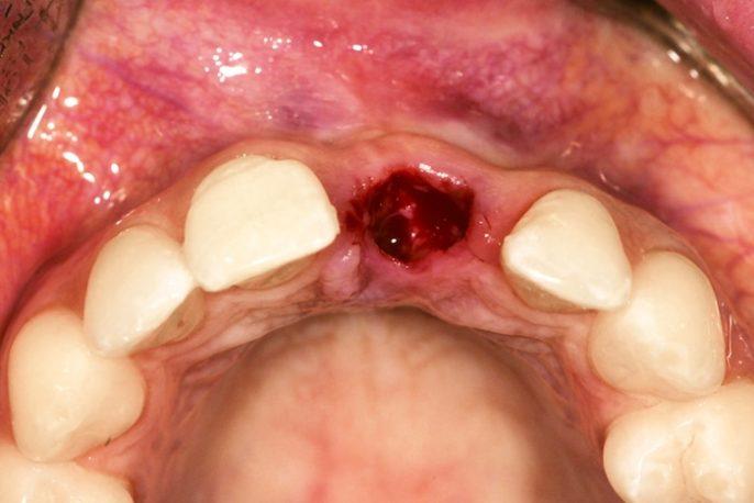 La alveolitis seca es una complicación dolorosa de la extracción del diente